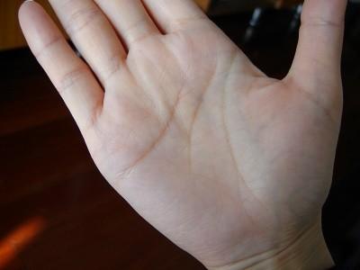怎样从手相中预测脑溢血