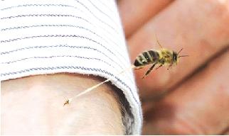 梦见蜜蜂蛰自己嘴