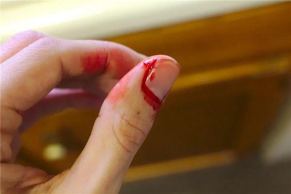 梦见病人的大拇指擦伤