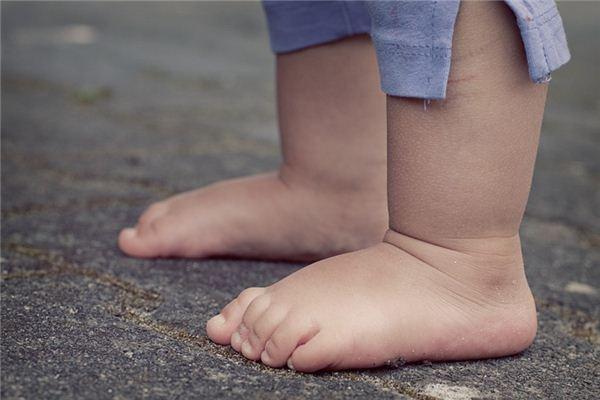 梦见脚肿是什么意思