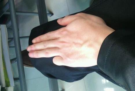 梦见小手指受伤
