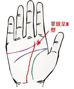 手掌掌纹呈M型